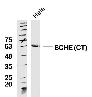 BCHE CT Antibody in Western Blot (WB)