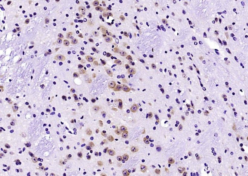 HER4/ErbB4 Antibody in Immunohistochemistry (Paraffin) (IHC (P))