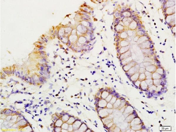 HMGA1 Antibody in Immunohistochemistry (Paraffin) (IHC (P))