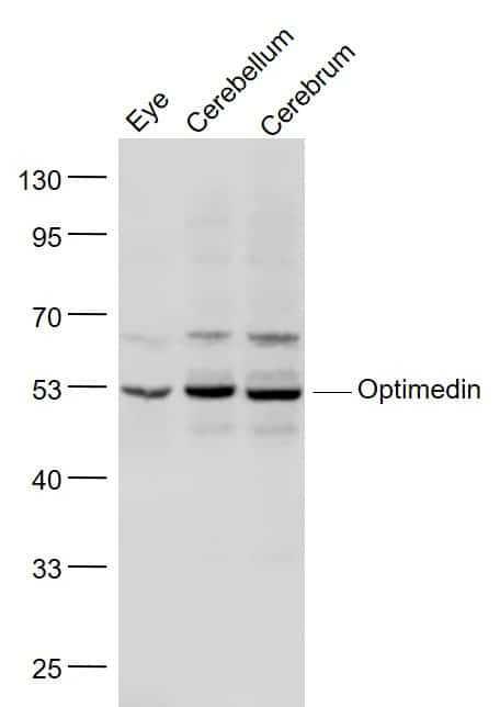 OLFM3/Optimedin Antibody in Western Blot (WB)