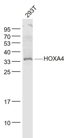 HOXA4 Antibody in Western Blot (WB)
