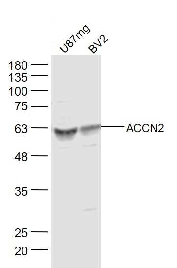 ACCN2 Antibody in Western Blot (WB)