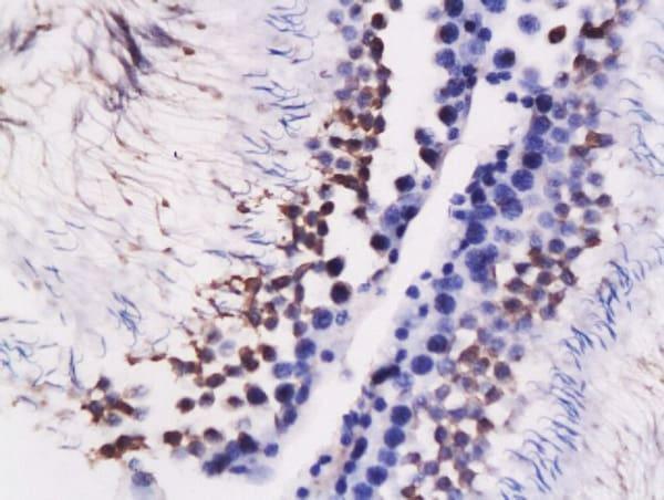 GRP78 Antibody in Immunohistochemistry (Paraffin) (IHC (P))
