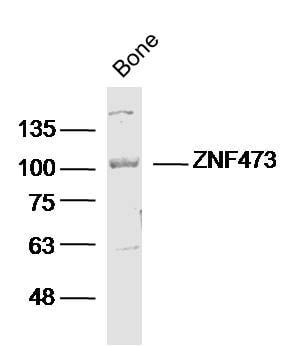 ZFP100/ZNF473 Antibody in Western Blot (WB)