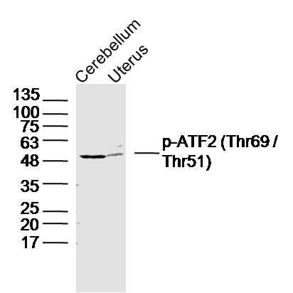 Phospho-ATF2 (Thr69) Antibody in Western Blot (WB)
