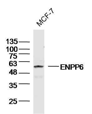 ENPP6 Antibody in Western Blot (WB)
