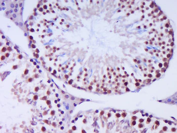 Exonuclease 1 Antibody in Immunohistochemistry (Paraffin) (IHC (P))
