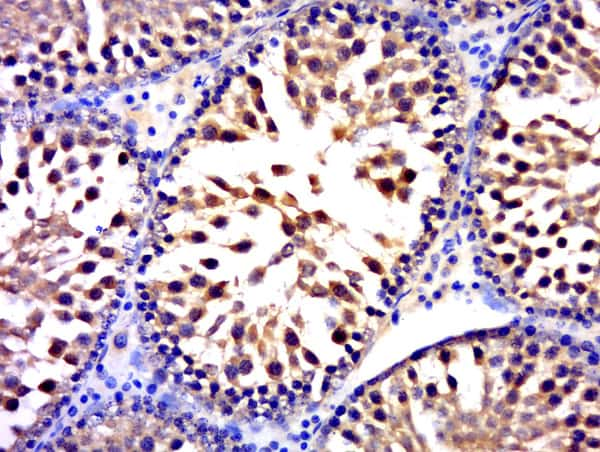 FUSIP1 Antibody in Immunohistochemistry (Paraffin) (IHC (P))