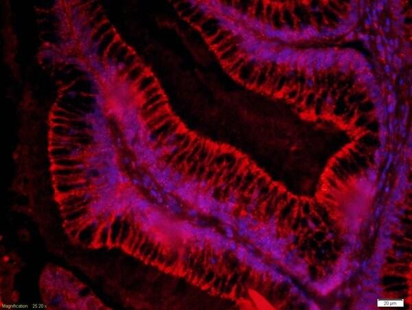 FZD3/Frizzled 3 Antibody in Immunohistochemistry (Paraffin) (IHC (P))
