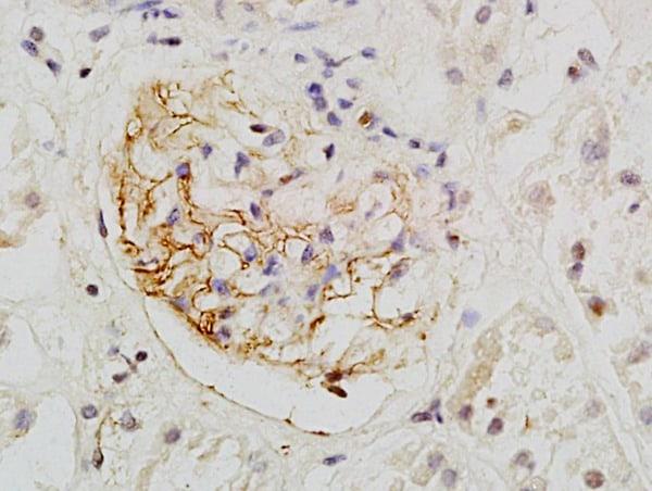 Podocalyxin Antibody in Immunohistochemistry (Paraffin) (IHC (P))
