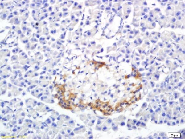SREBP-1/2 Antibody in Immunohistochemistry (Paraffin) (IHC (P))