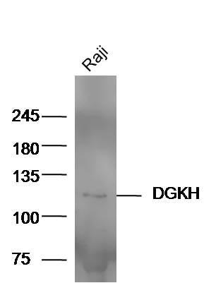 DGKH Antibody in Western Blot (WB)