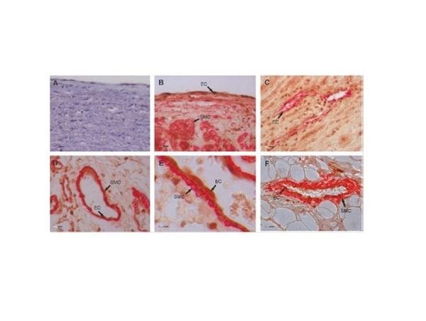 Gremlin 1 Antibody in Immunohistochemistry (Paraffin) (IHC (P))