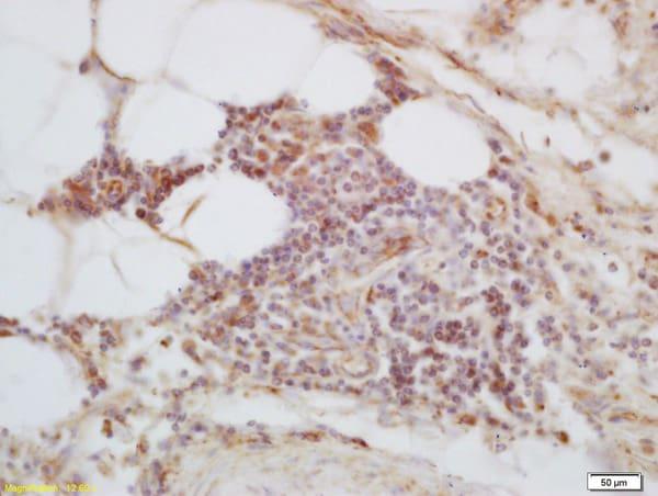 C1orf106 Antibody in Immunohistochemistry (Paraffin) (IHC (P))