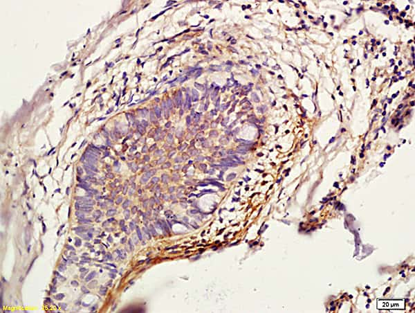 Cathepsin L Antibody in Immunohistochemistry (Paraffin) (IHC (P))