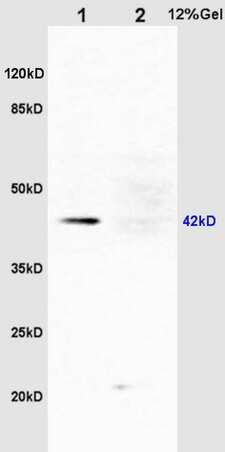 Phospho-ERK1 (Thr183, Tyr185) Antibody in Western Blot (WB)