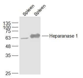 Heparanase Antibody in Western Blot (WB)