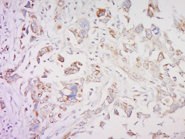 SMAD1 Antibody in Immunohistochemistry (Paraffin) (IHC (P))
