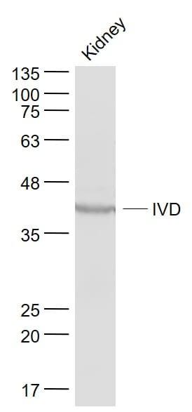 IVD Antibody in Western Blot (WB)