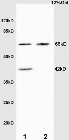 Elastin Antibody in Western Blot (WB)
