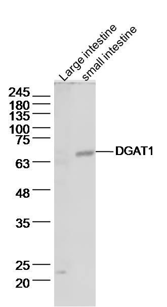 DGAT1/Diglyceride acyltransferase Antibody in Western Blot (WB)