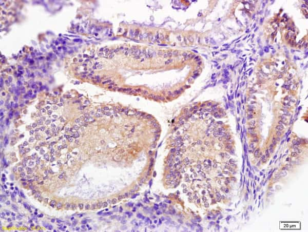 Signal recognition particle Antibody in Immunohistochemistry (Paraffin) (IHC (P))