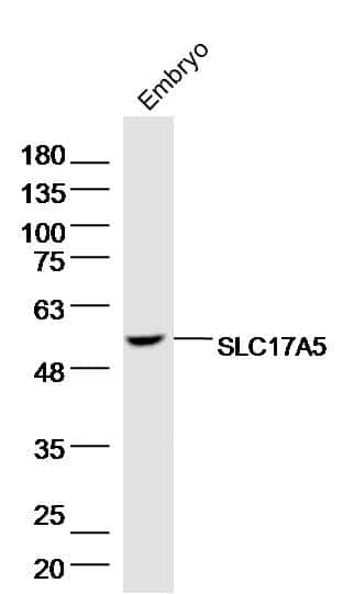 SLC17A5 Antibody in Western Blot (WB)