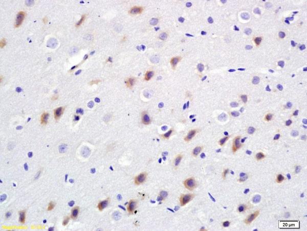 BDKRB2 Antibody in Immunohistochemistry (Paraffin) (IHC (P))