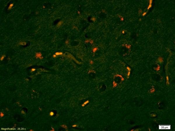Lyn Antibody in Immunofluorescence (IF)