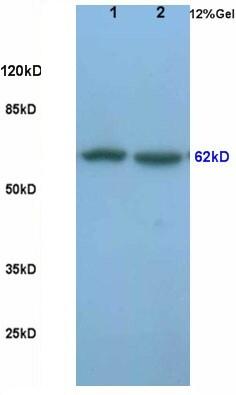 Frizzled 5/8 Antibody in Western Blot (WB)