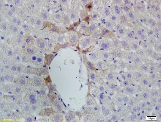 Vitamin D Receptor/VDR Antibody in Immunohistochemistry (Paraffin) (IHC (P))