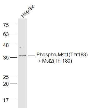 Phospho-Mst1/Mst2 (Thr183, Thr180) Antibody in Western Blot (WB)