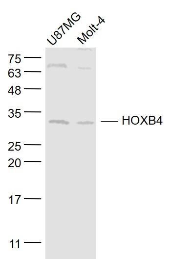 HOXB4 Antibody in Western Blot (WB)
