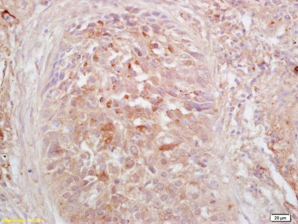 Phospho-HSF1 (Ser326) Antibody in Immunohistochemistry (Paraffin) (IHC (P))
