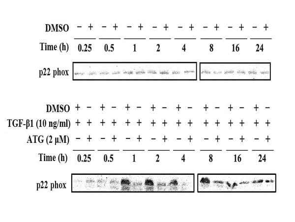 Cytochrome b245 Light Chain Antibody in Western Blot (WB)