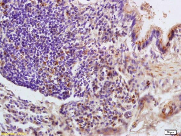 LONP1 Antibody in Immunohistochemistry (Paraffin) (IHC (P))