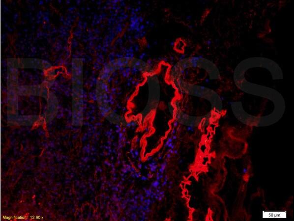 Collagen 4 Antibody in Immunofluorescence (IF)
