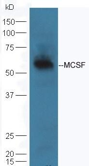 MCSF Antibody in Western Blot (WB)