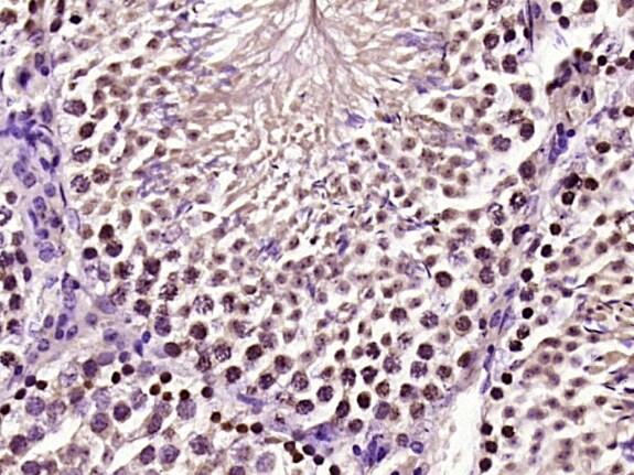 CREM Antibody in Immunohistochemistry (Paraffin) (IHC (P))