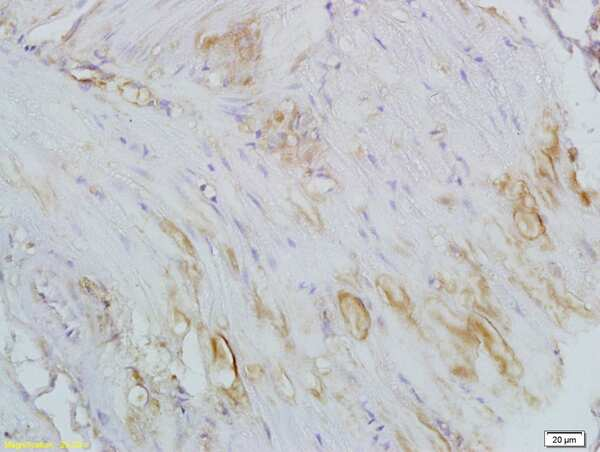 CTHRC1 Antibody in Immunohistochemistry (Paraffin) (IHC (P))