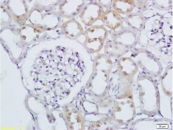 RAB20 Antibody in Immunohistochemistry (Paraffin) (IHC (P))