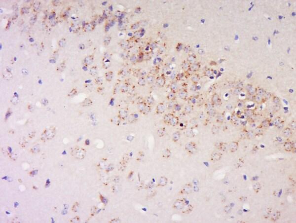 IFN-Alpha Antibody in Immunohistochemistry (Paraffin) (IHC (P))