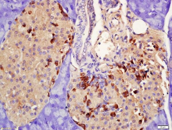 PRLR Antibody in Immunohistochemistry (Paraffin) (IHC (P))