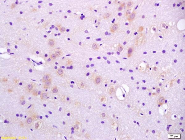 CaI-PLA2 Antibody in Immunohistochemistry (Paraffin) (IHC (P))