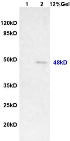 MAGEA11 Antibody in Western Blot (WB)