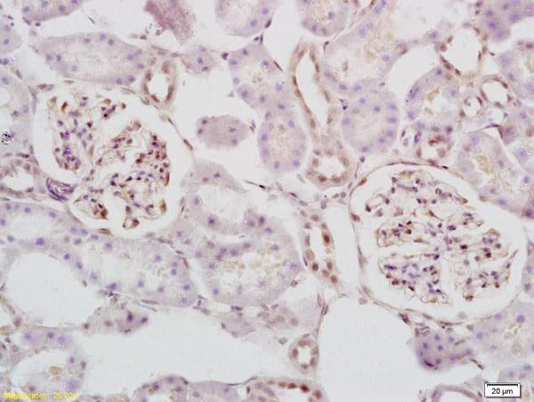 STK3+STK4 Antibody in Immunohistochemistry (Paraffin) (IHC (P))
