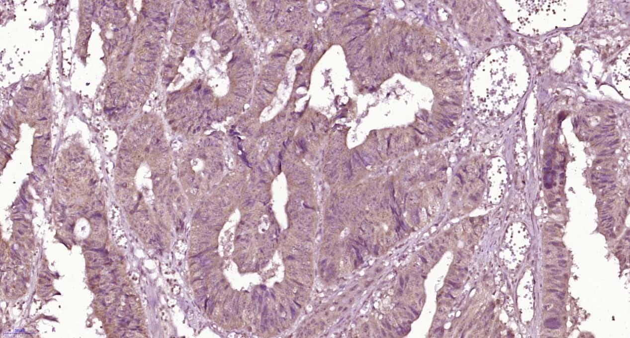 Properdin Antibody in Immunohistochemistry (Paraffin) (IHC (P))