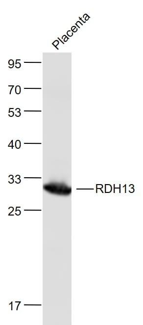 RDH13 Antibody in Western Blot (WB)