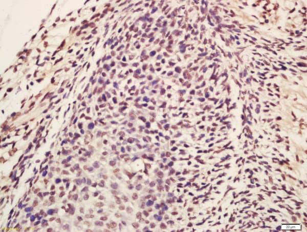Lin28A/B Antibody in Immunohistochemistry (Paraffin) (IHC (P))