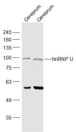 hnRNP U Antibody in Western Blot (WB)
